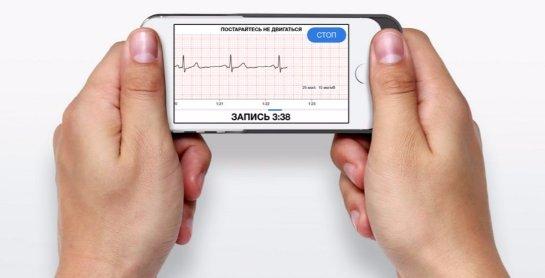 Специальный чехол от российских разработчиков превращает смартфон в кардиомонитор